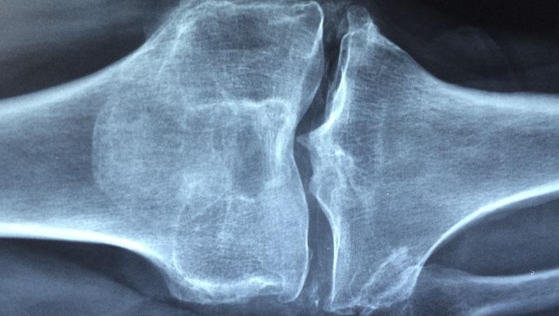 Kost koleno rentgen