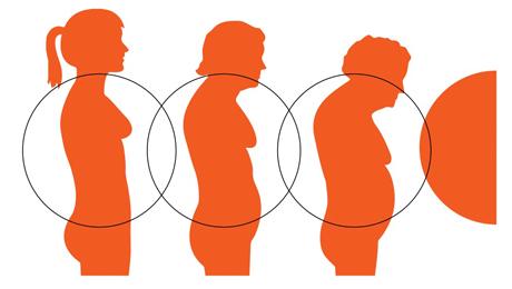 Osteoporóza ilustrace