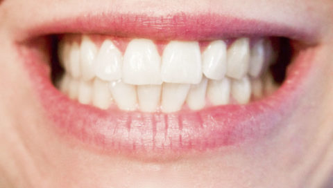 zuby ústa